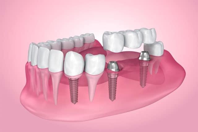 Implantes dentales: Ventajas frente a restauraciones convencionales