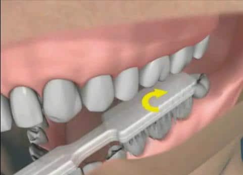 tecncas-cepillado-dental