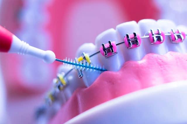 ¿Cómo se limpian los aparatos de ortodoncia?