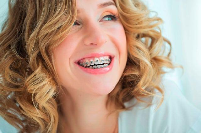 Ortodoncia a partir de los 30, ¿merece la pena?