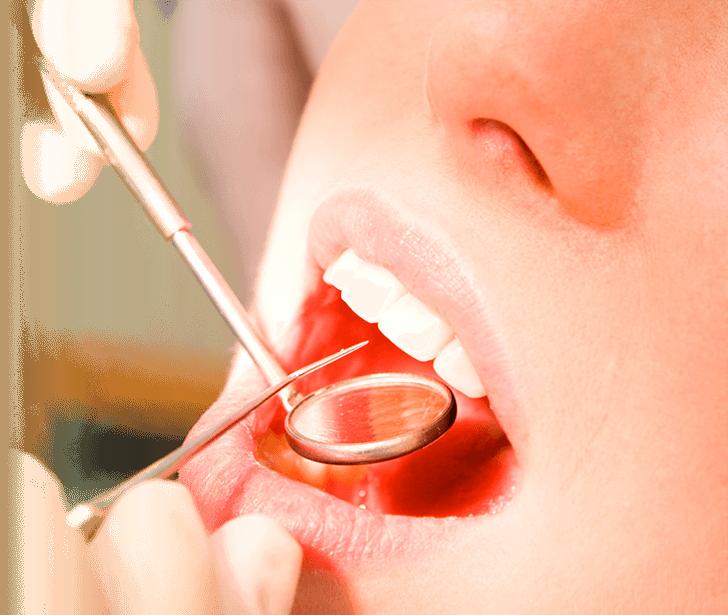 Visita al dentista Las Rozas