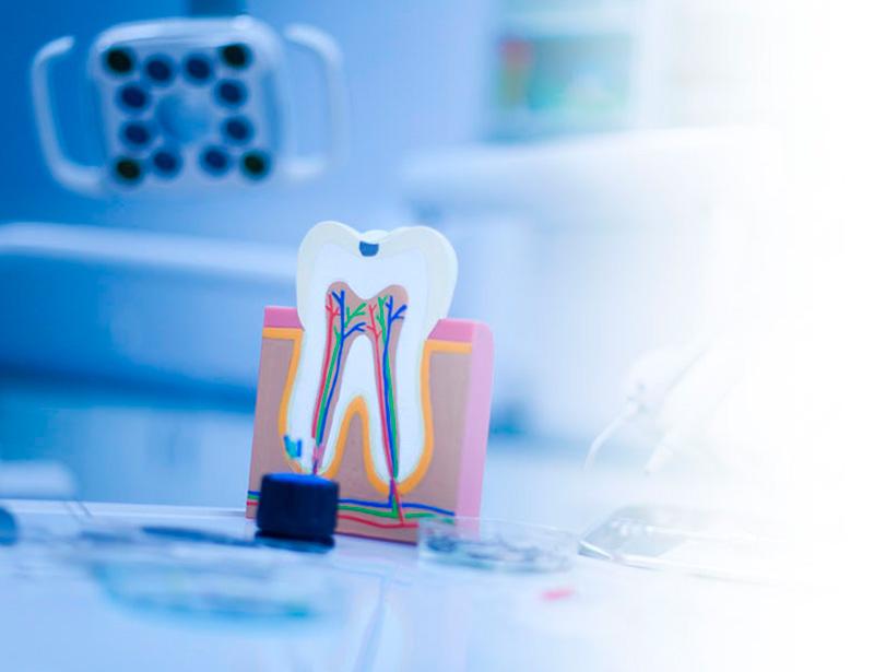 dentista endodoncia las rozas