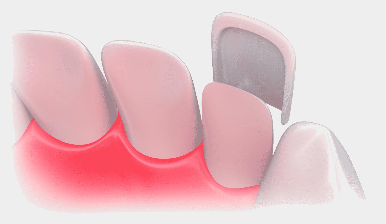 Estética dental en las rozas Madrid