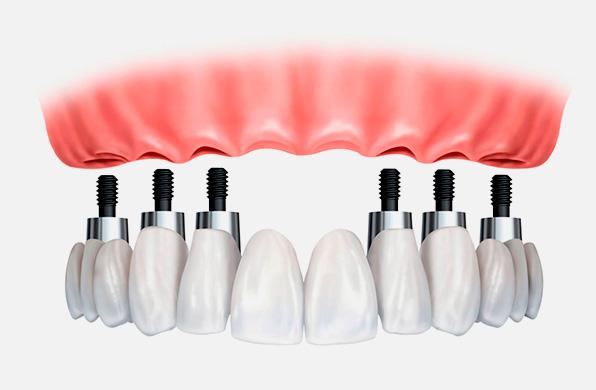 Estética Dental las rozas