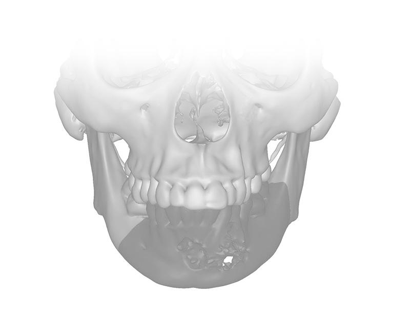 ¿Qué es la cirugía maxilofacial?