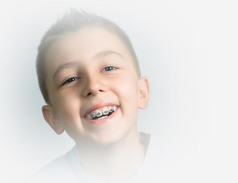 tratamiento de ortodoncia para jóvenes