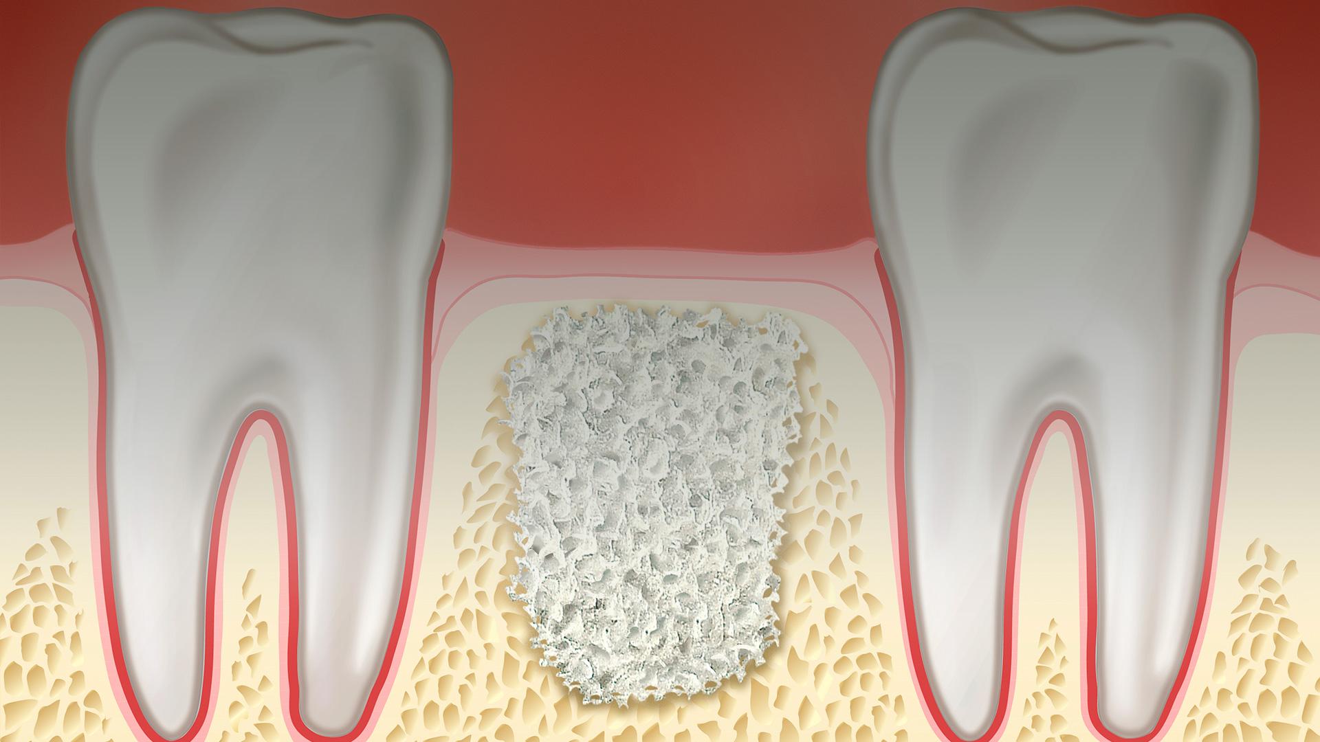 Implantes dentales con injertos óseos
