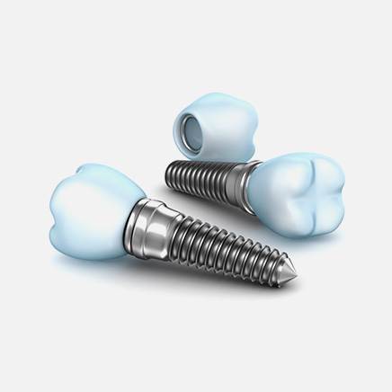 implantes dentales info 3