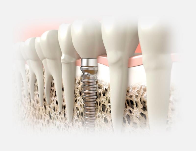 Tipos de Implantes Dentales Elevación de seno