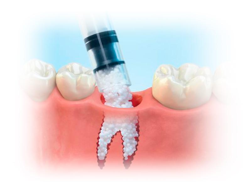 Tipos de Implantes Dentales Injertos Óseos