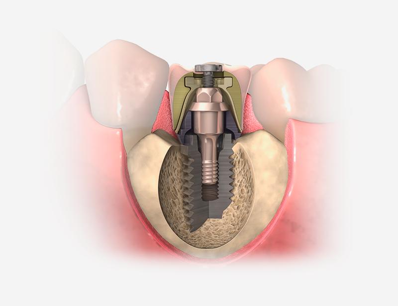 Procedimiento de los injertos óseos