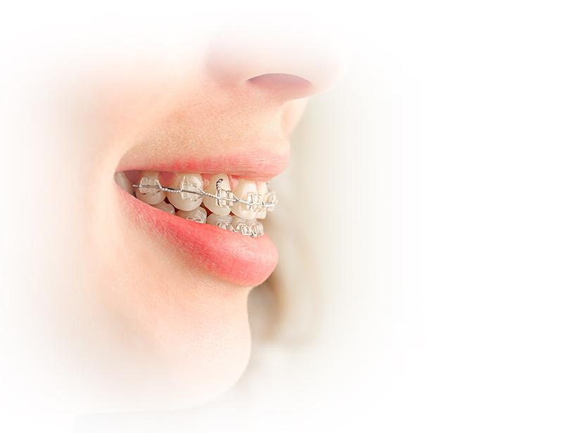 Ortodoncia estética dental las rozas