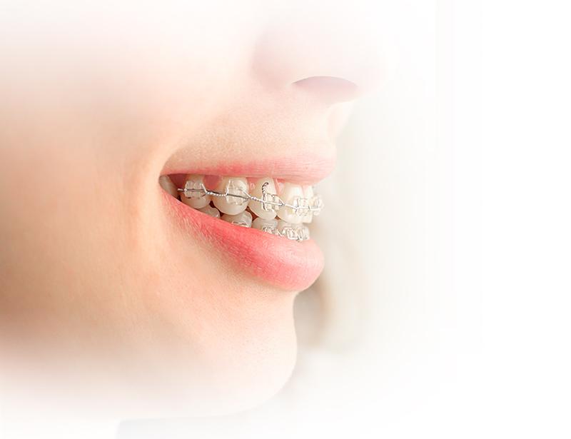 Qué es ortodoncia las rozas