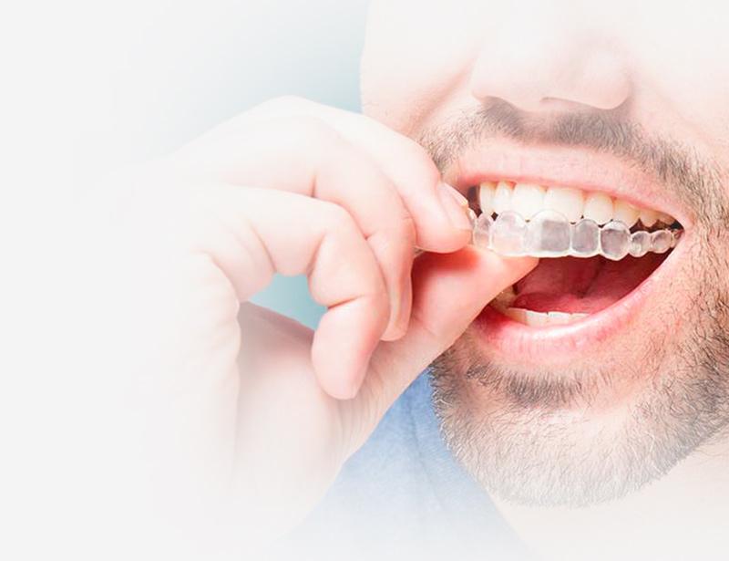 ortodoncia invisible | invisalign las rozas