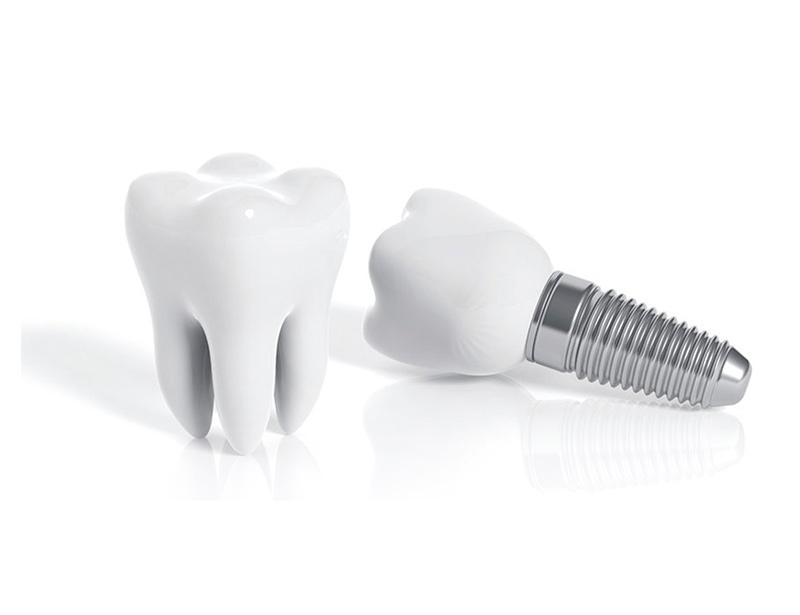 Qué son prótesis sobre implantes