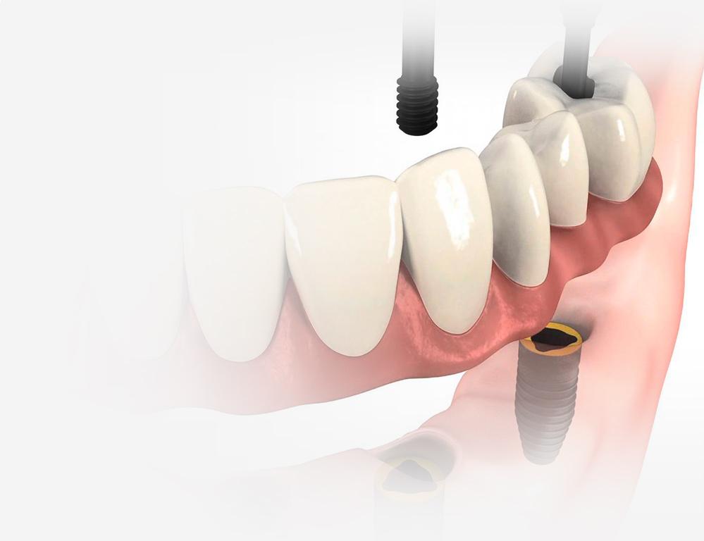 Beneficios sobre las prótesis sobre implantes