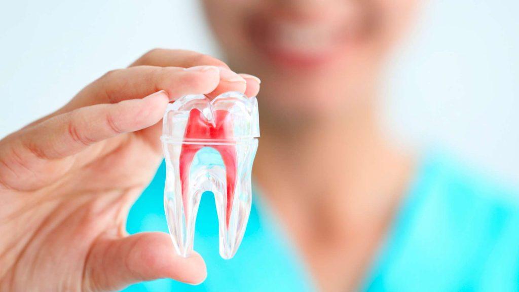 Ventajas de la endodoncia mecanizada