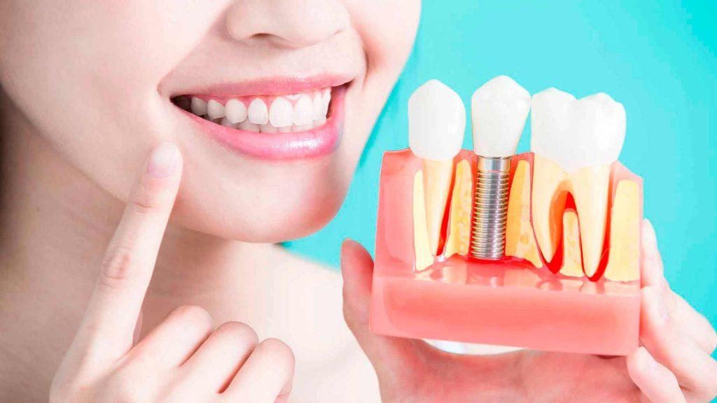 Me han hecho una endodoncia, ¿necesita mi diente un perno?