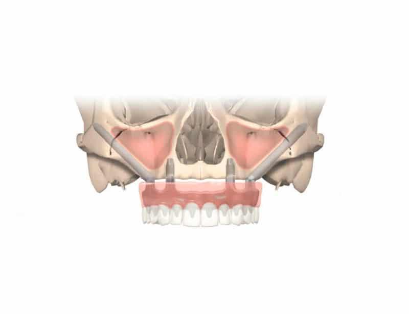 Qué son los implantes cigomáticos