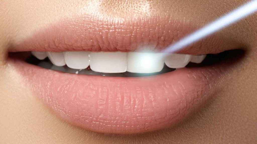 Beneficios del uso del láser en la periodoncia y la endodoncia