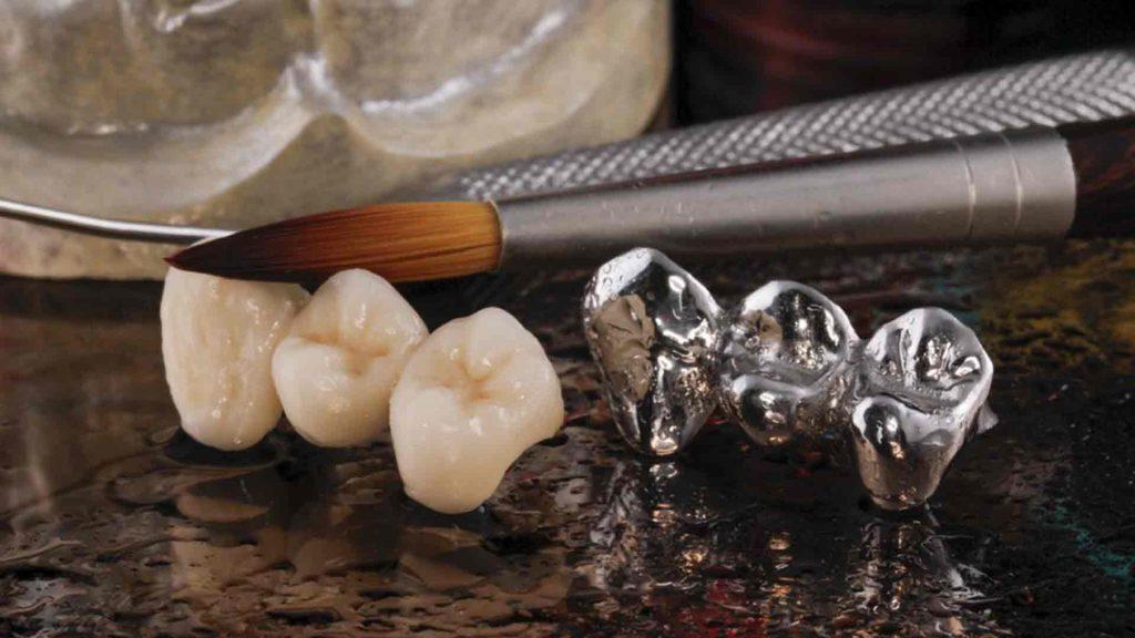 ¿Coronas Dentales para tu sonrisa?