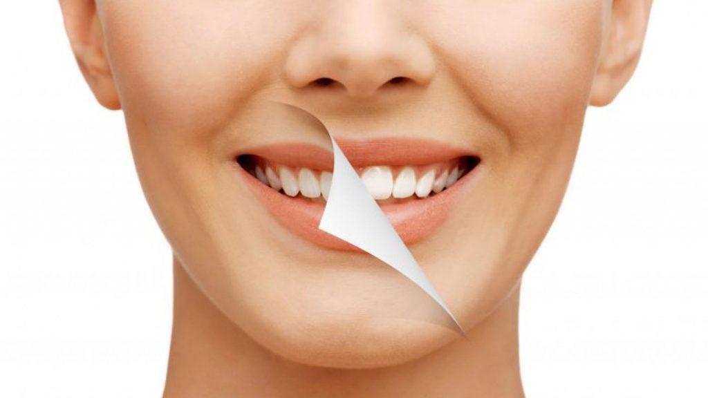 Cuidados después de realizarte un Blanqueamiento Dental