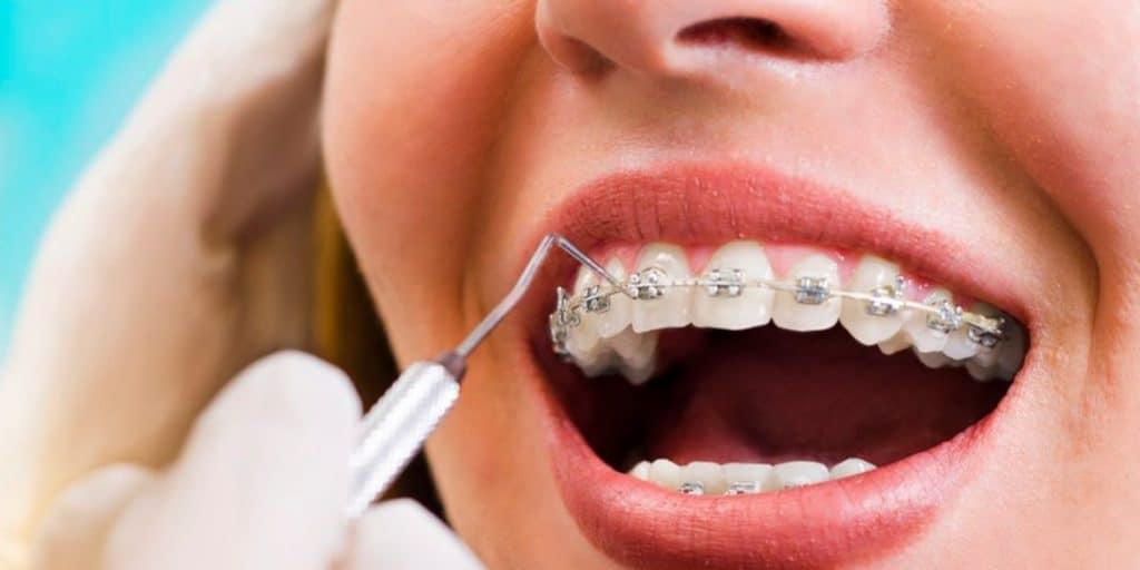 5 importantes hábitos de higiene en pacientes con ortodoncia