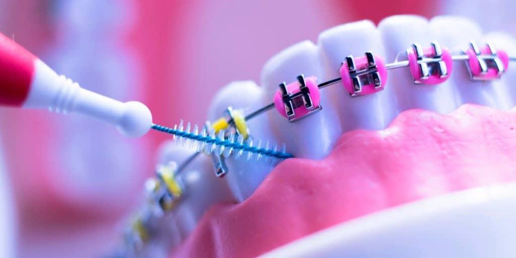 Consejos para reducir los dolores causados por la ortodoncia