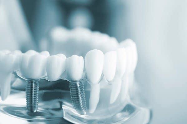 ¿Si tengo implantes dentales puedo hacerme una radiofrecuencia?