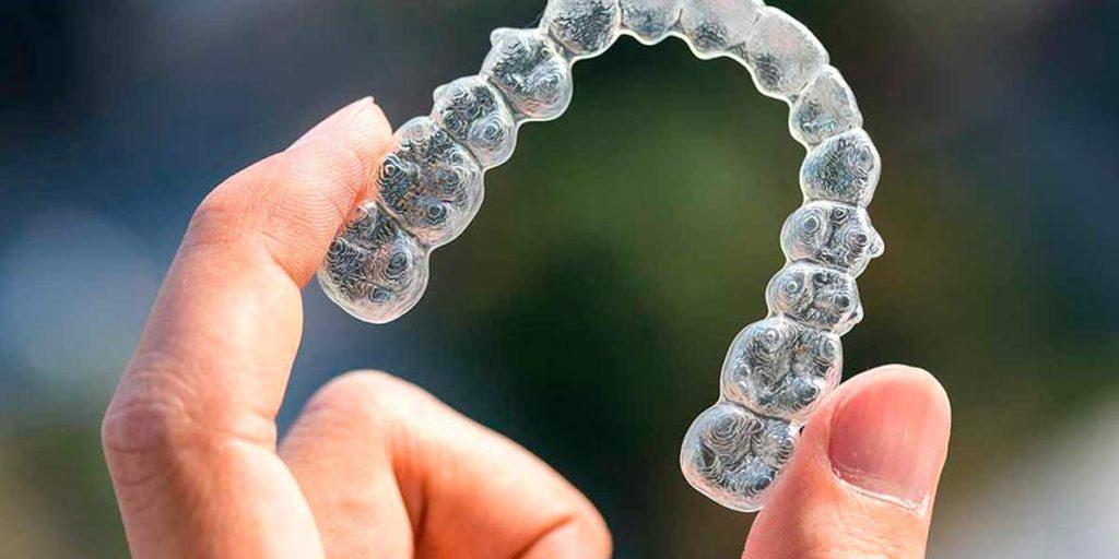 Con los brackets removibles nadie sabrá que llevas ortodoncia