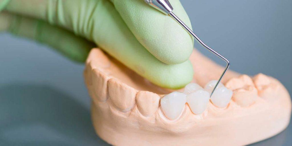 Diferencias entre las incrustaciones dentales