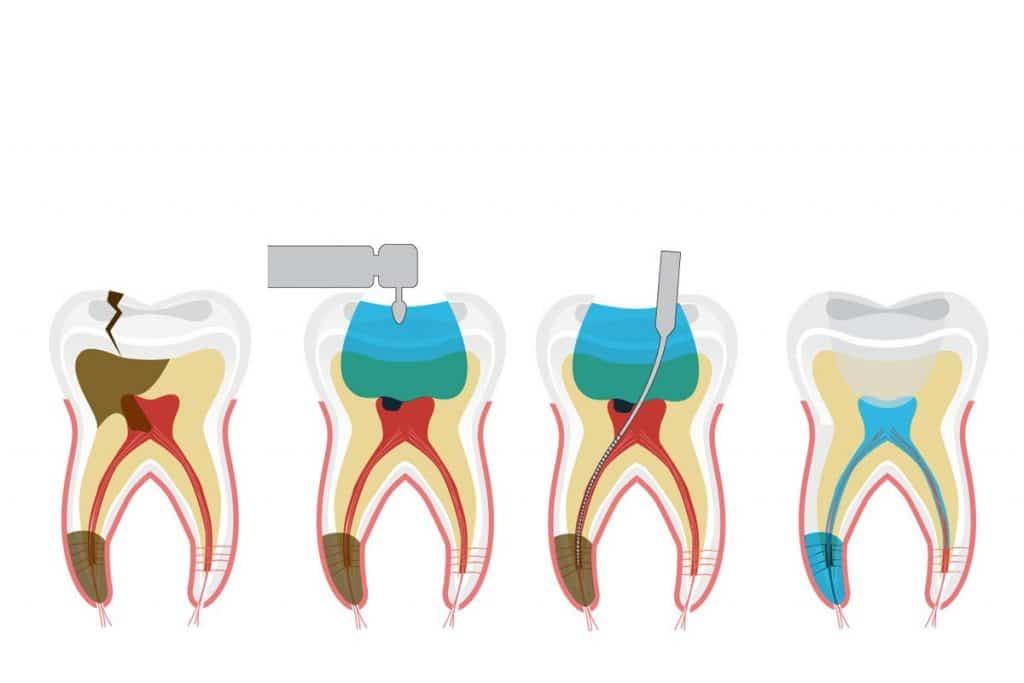¿Por qué necesito una endodoncia si el diente no me duele?