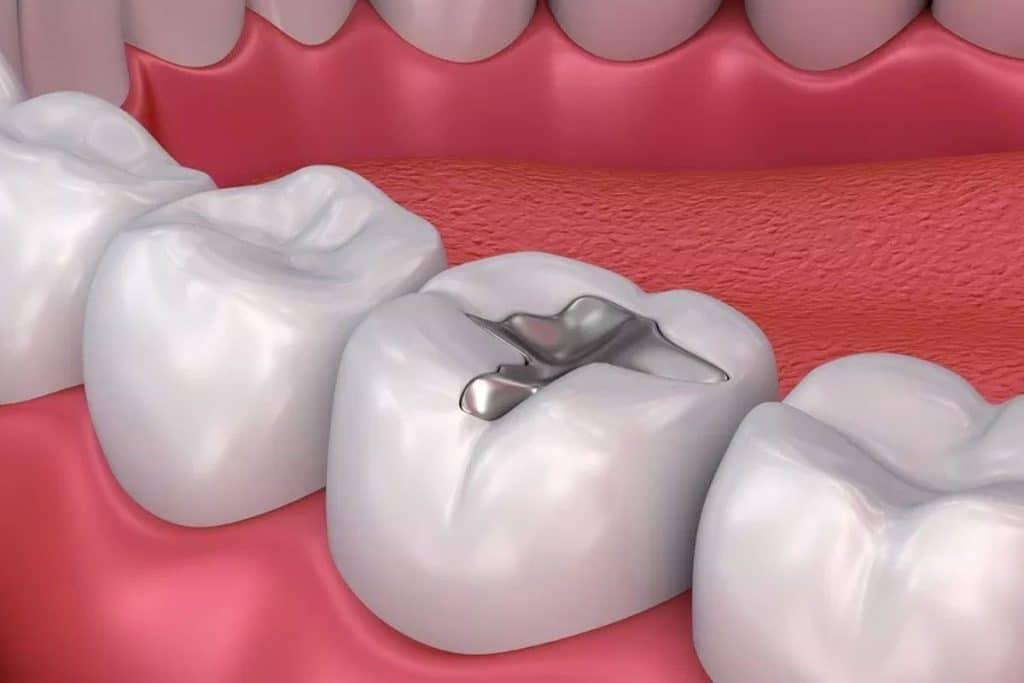 ¿Sabías que el primer empaste de un molar se hizo en 1447?