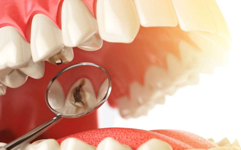 ¿Qué tan buenas son las incrustaciones dentales si sufro de caries?