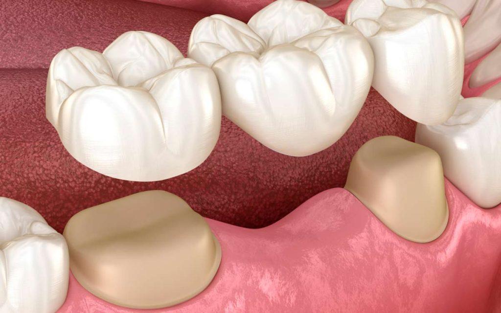 Incrustaciones dentales o coronas dentales ¿Qué es mejor?