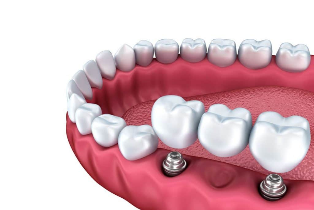 Diseño de prótesis dentales mediante ordenador