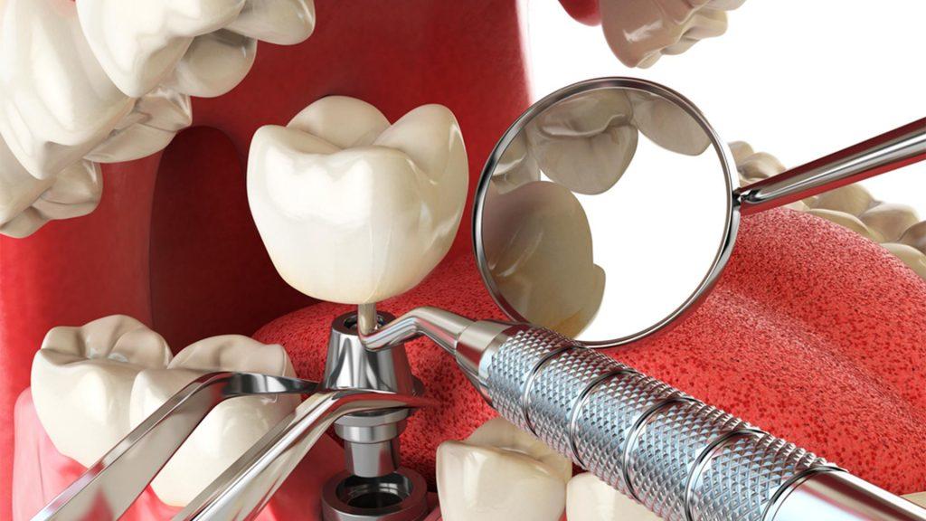 5 cosas a saber antes de que te hagan un implante dental