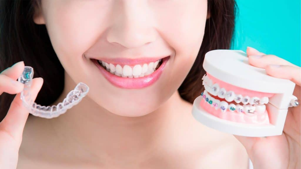 10 preguntas frecuentes sobre la ortodoncia