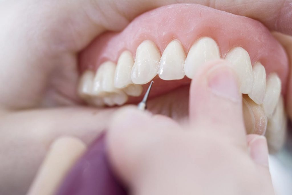 ¿Qué son las incrustaciones dentales?