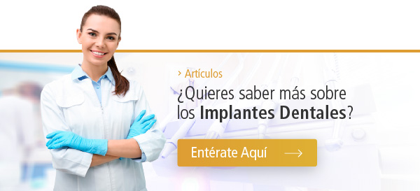 Articulo - Implantes Dentales
