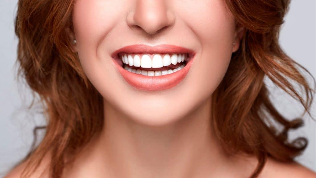 ¿Cómo debe ser una sonrisa estética?