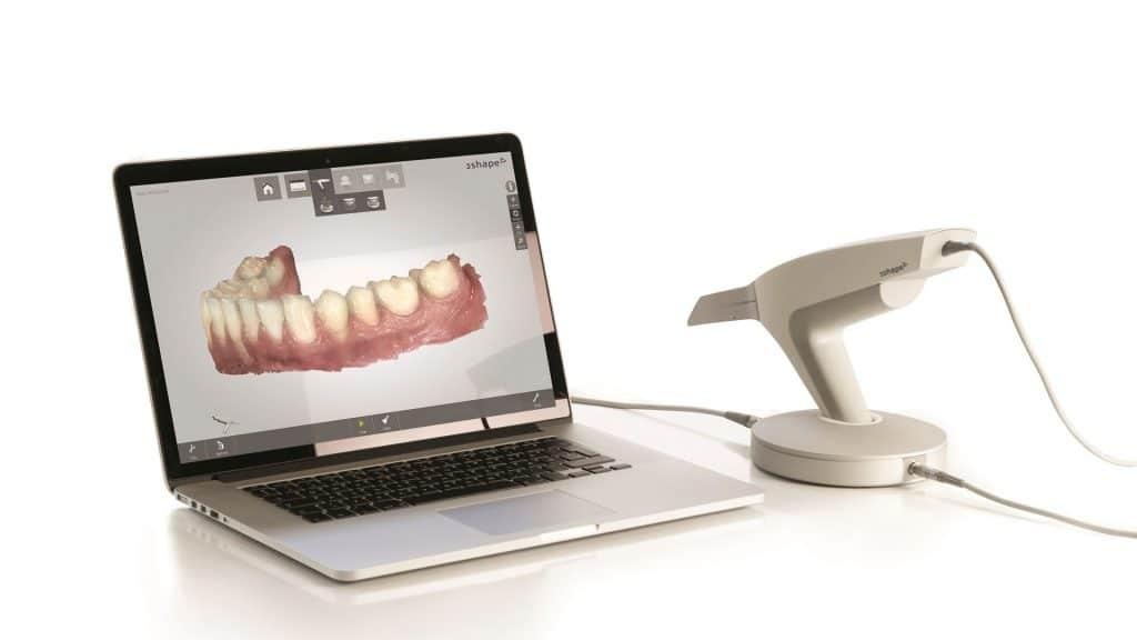 La importancia de las impresiones dentales en el proceso de rehabilitación oral