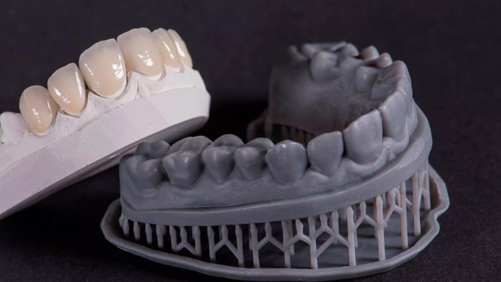 Impresiones dentales ¿Qué son?