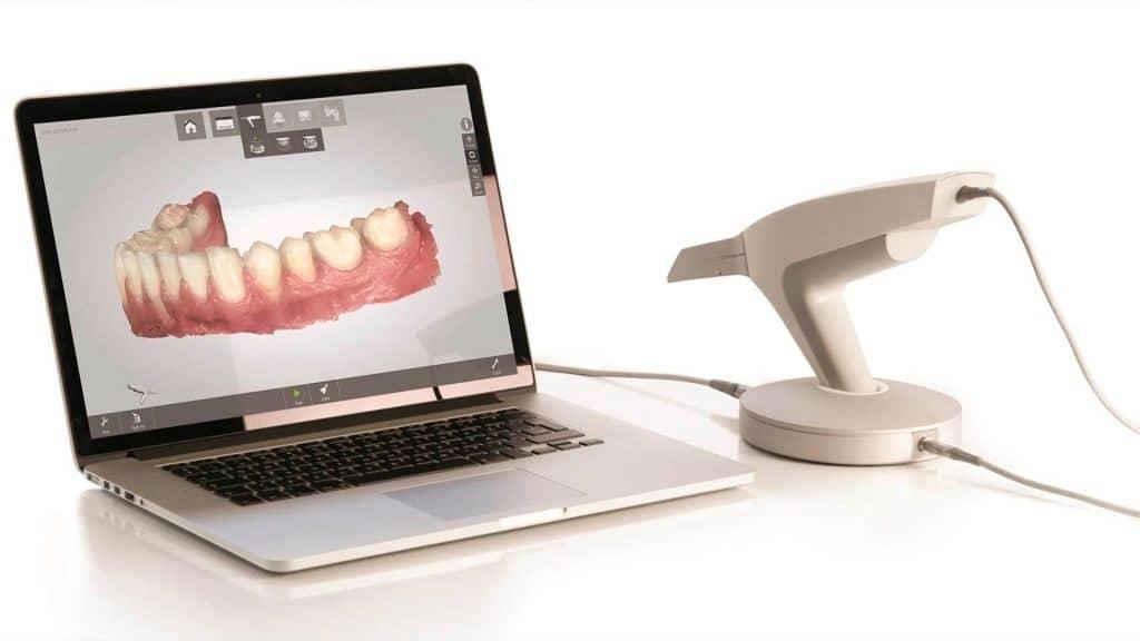 Tecnologías dentales: Escáner intraoral