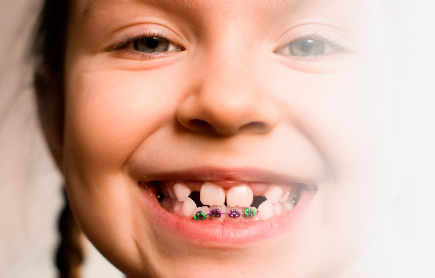 cuestionario que tratamiento de ortodoncia necesita un niño