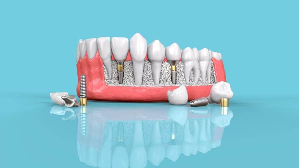 Beneficios que debes conocer sobre los implantes dentales Straumann