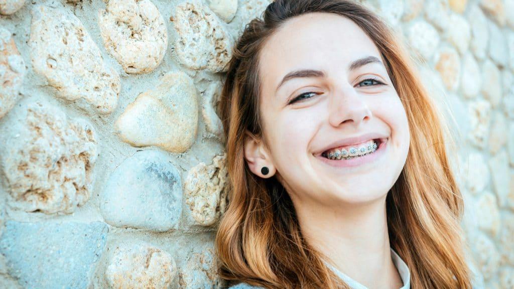¿Cuál es la edad ideal para la ortodoncia infantil?