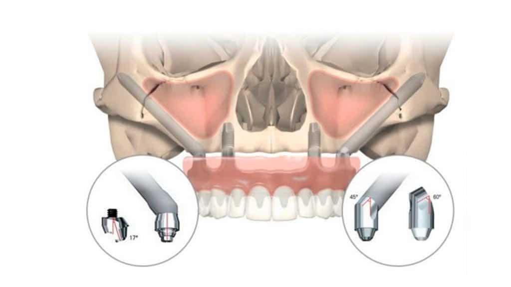Implantes cigomáticos, nuestra falta de hueso tiene solución