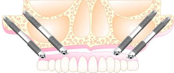 Ventajas de los implantes cigomáticos