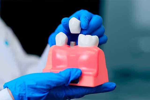 Fases de un implante dental, lo que tengo que saber antes del tratamiento.